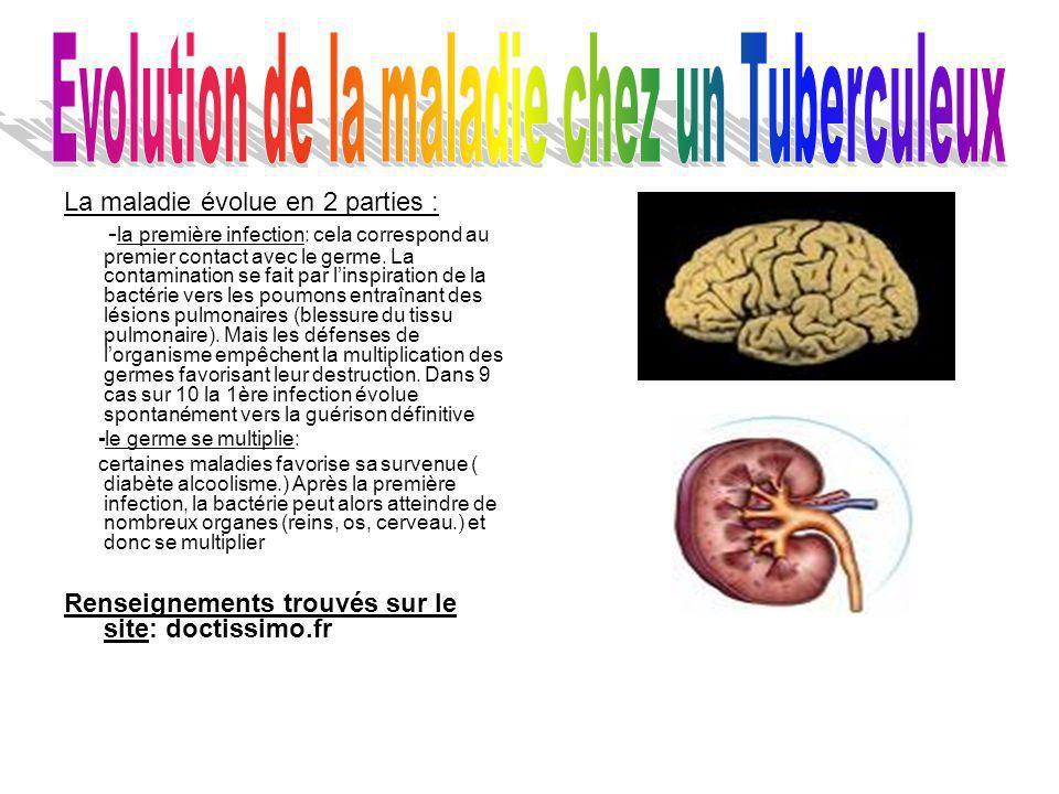 Evolution de la maladie chez un Tuberculeux