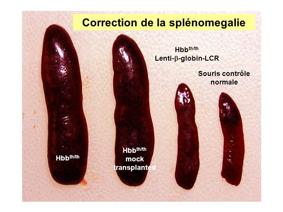 Correction de la splénomegalie