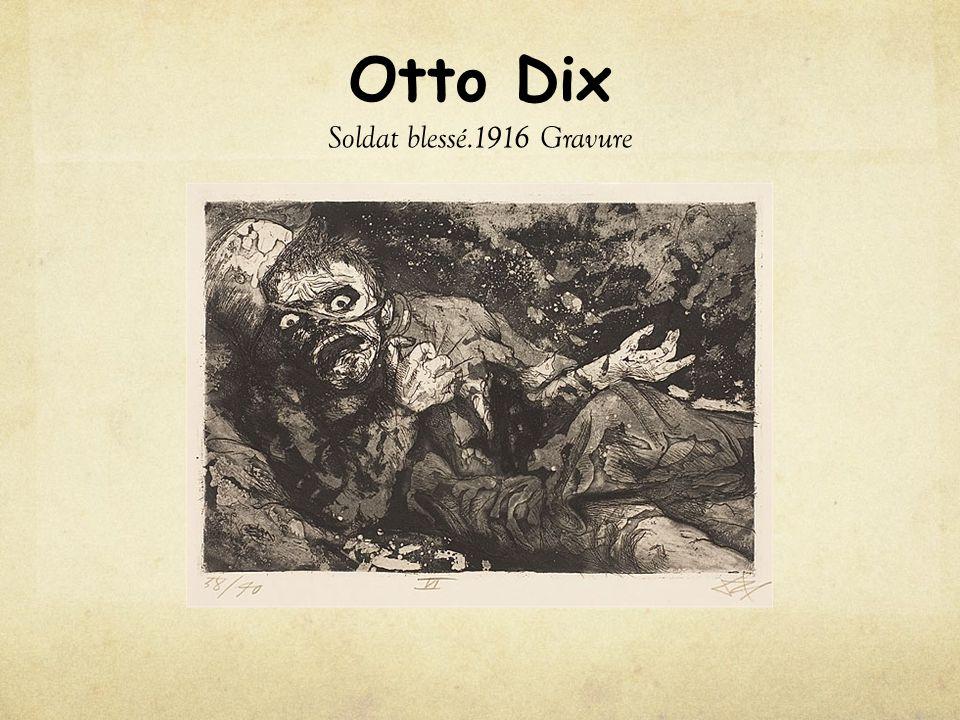 Otto Dix Soldat blessé.1916 Gravure