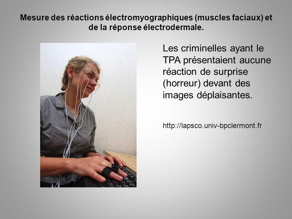 Mesure des réactions électromyographiques (muscles faciaux) et de la réponse électrodermale.