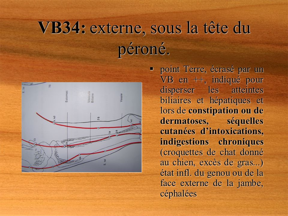 VB34: externe, sous la tête du péroné.