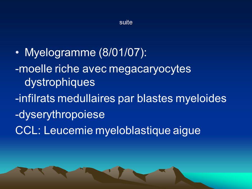 -moelle riche avec megacaryocytes dystrophiques