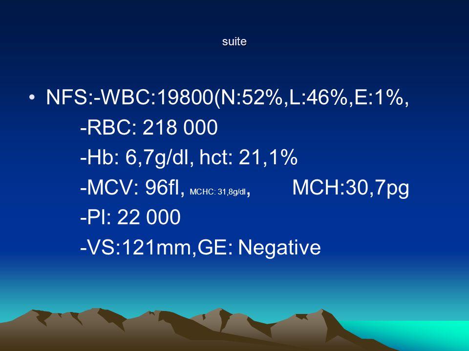 -MCV: 96fl, MCHC: 31,8g/dl, MCH:30,7pg -Pl: 22 000
