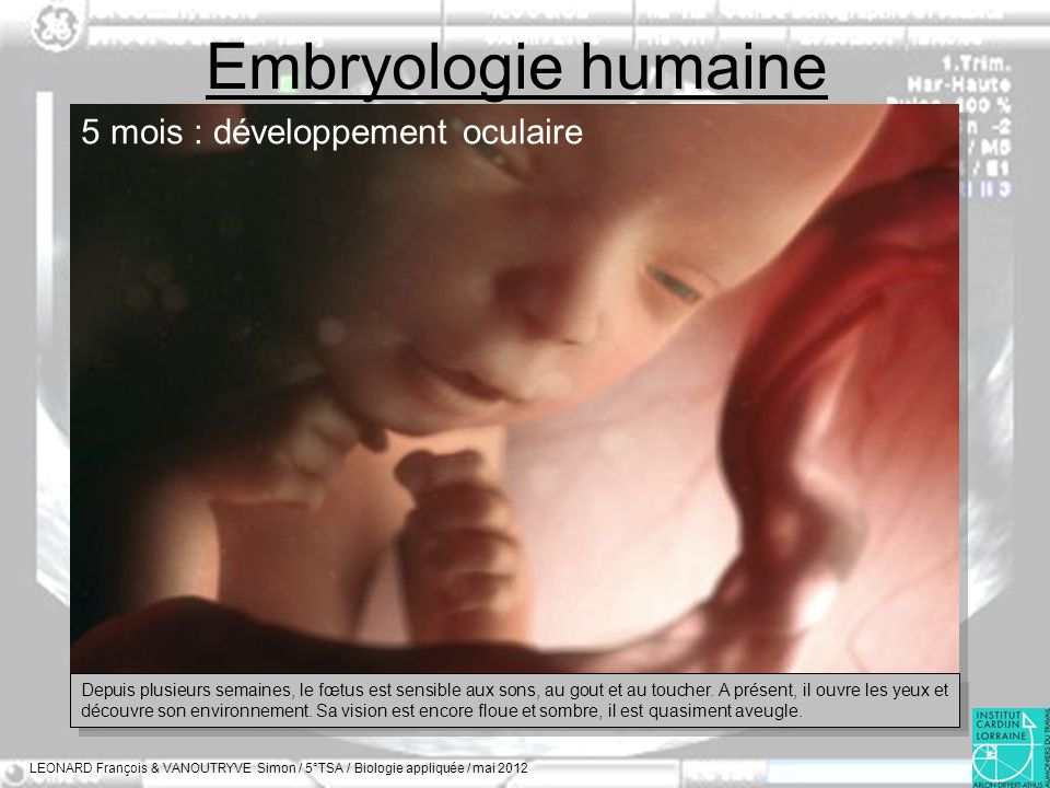 Embryologie humaine 5 mois : développement oculaire