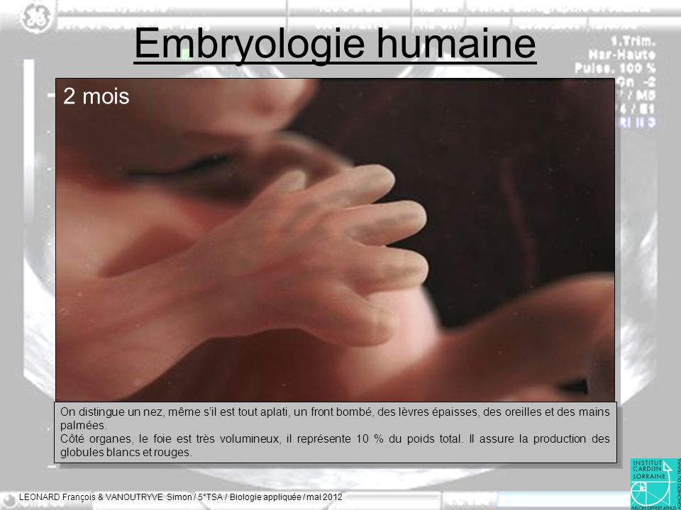 Embryologie humaine 2 mois