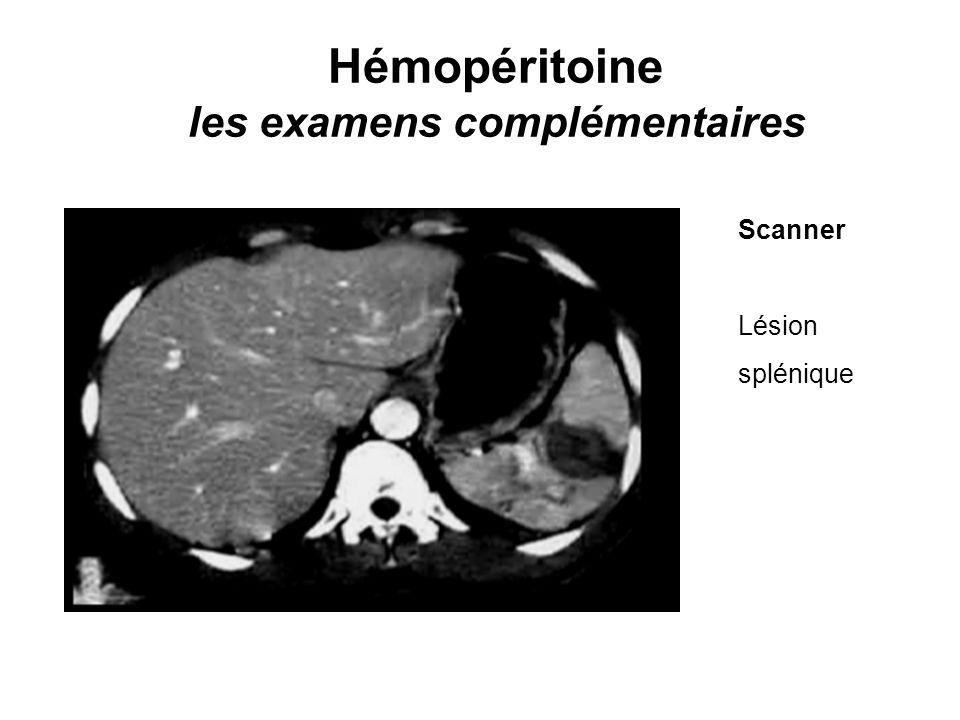 Hémopéritoine les examens complémentaires