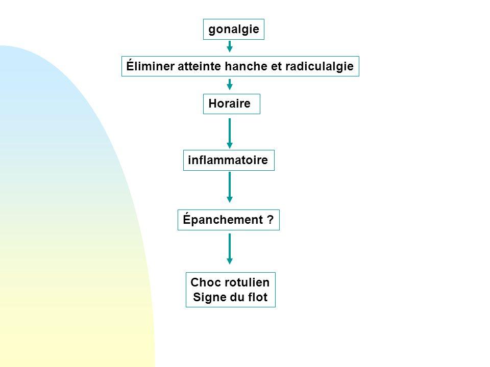 gonalgie Éliminer atteinte hanche et radiculalgie. Horaire. inflammatoire. Épanchement Choc rotulien.