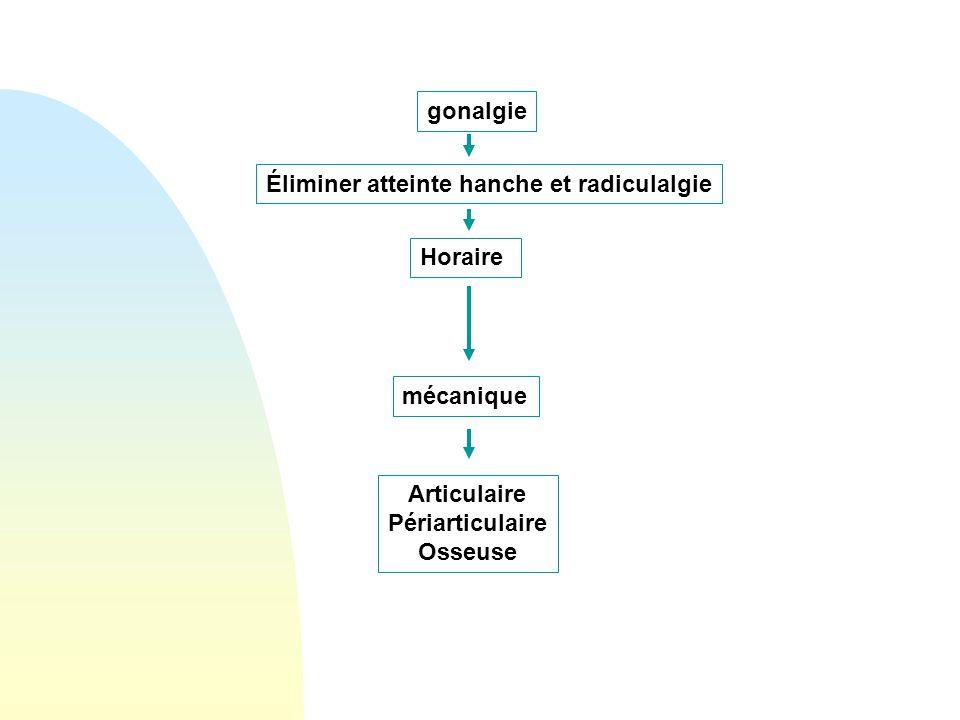 gonalgie Éliminer atteinte hanche et radiculalgie. Horaire. mécanique. Articulaire. Périarticulaire.