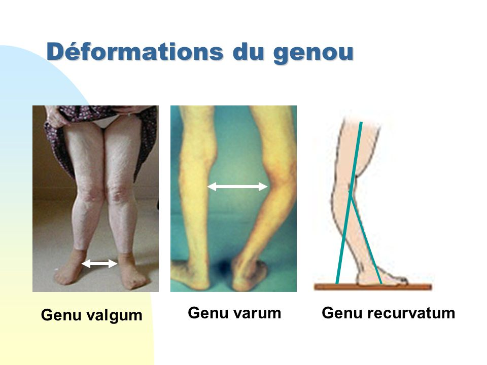 Déformations du genou Genu valgum Genu varum Genu recurvatum
