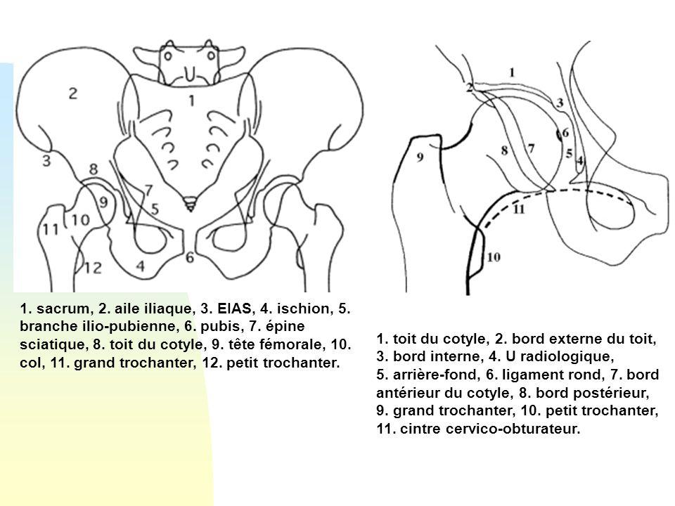1. sacrum, 2. aile iliaque, 3. EIAS, 4. ischion, 5