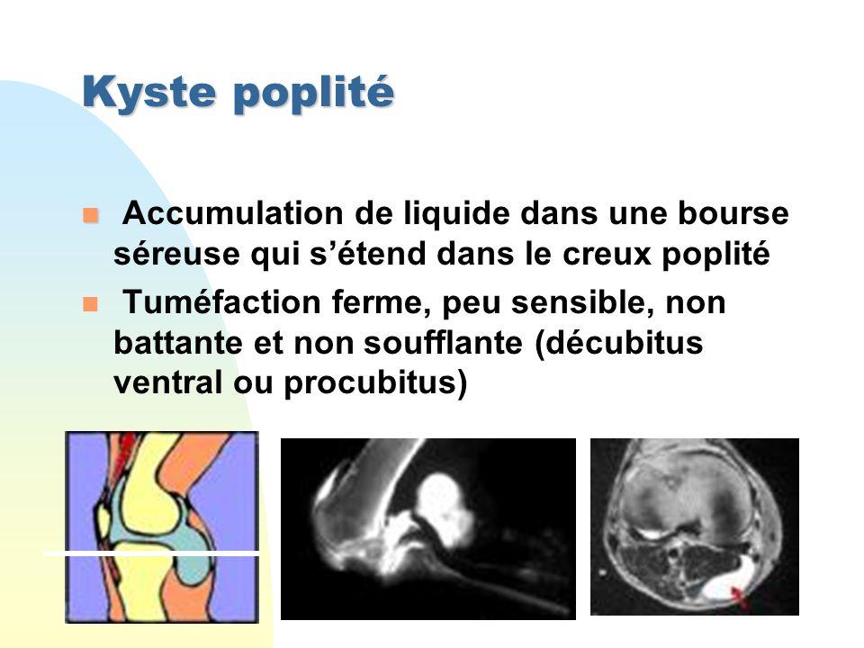 Kyste poplité Accumulation de liquide dans une bourse séreuse qui s'étend dans le creux poplité.