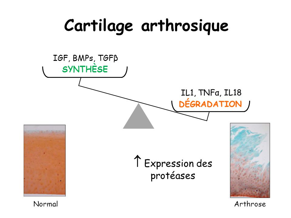 Cartilage arthrosique