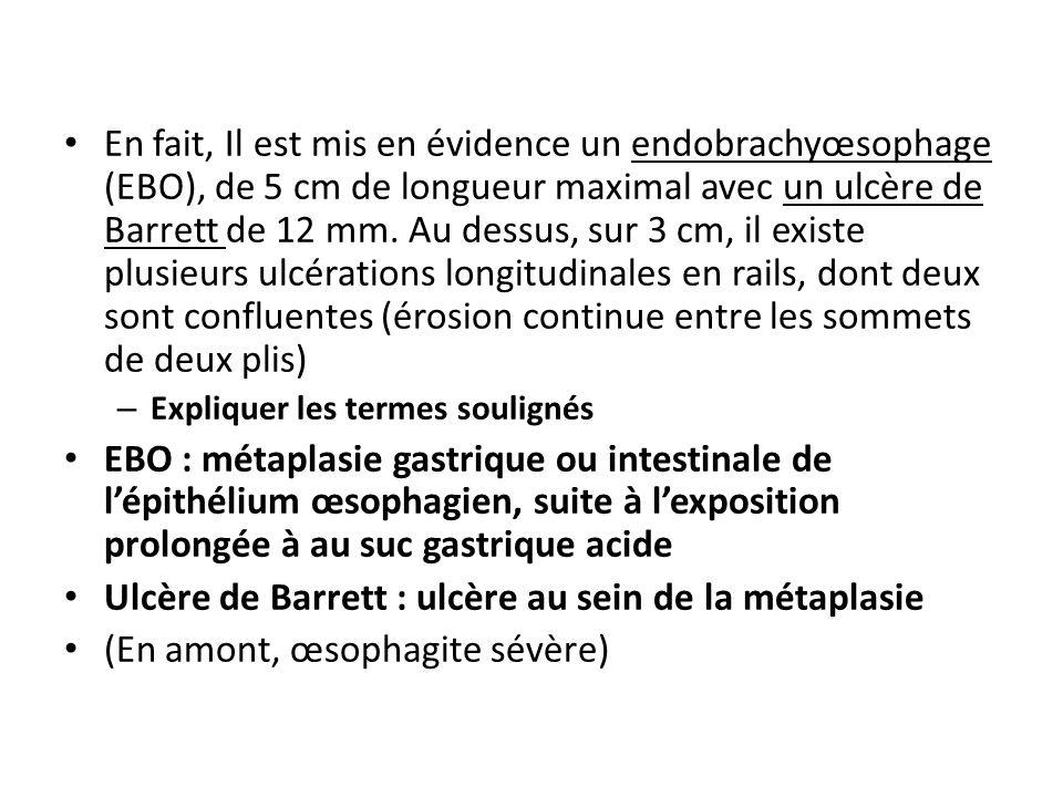 Ulcère de Barrett : ulcère au sein de la métaplasie