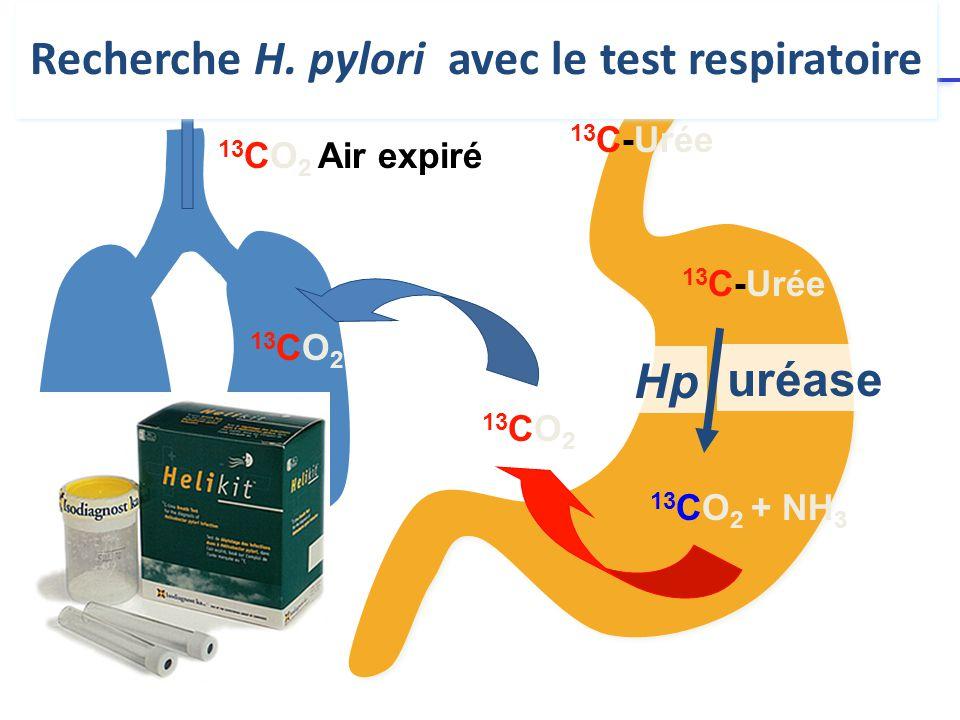 Recherche H. pylori avec le test respiratoire