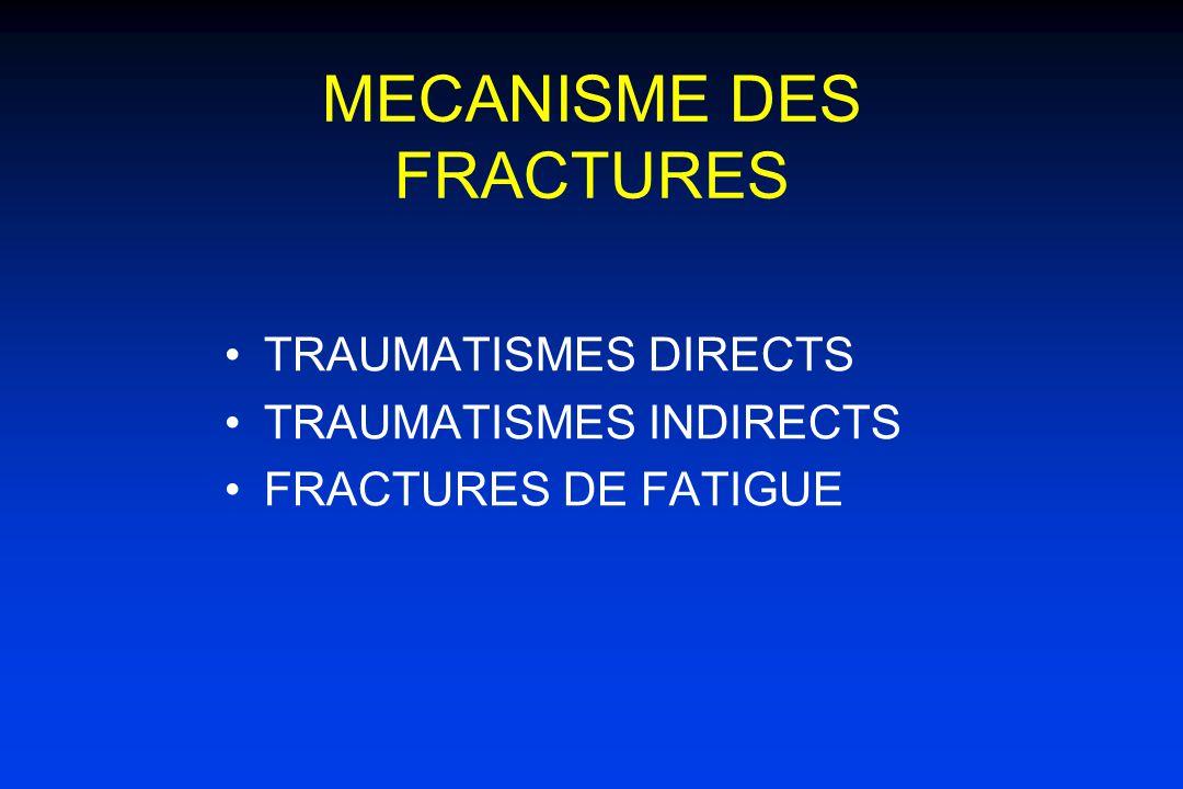 MECANISME DES FRACTURES