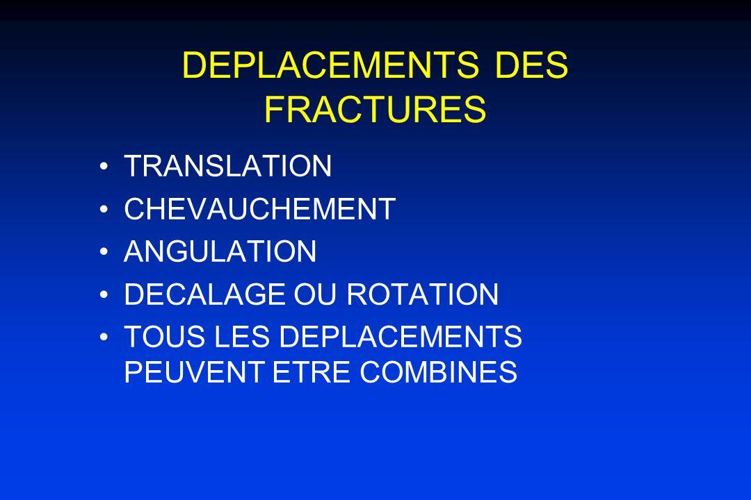 DEPLACEMENTS DES FRACTURES