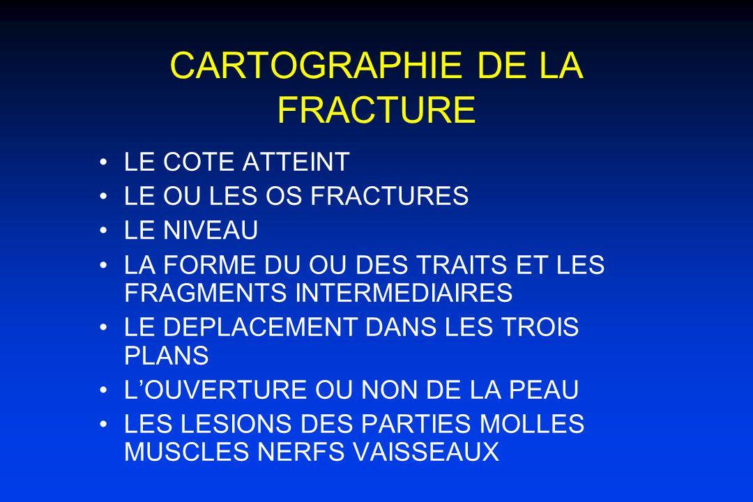 CARTOGRAPHIE DE LA FRACTURE