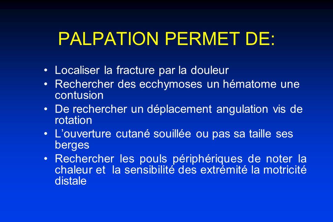 PALPATION PERMET DE: Localiser la fracture par la douleur