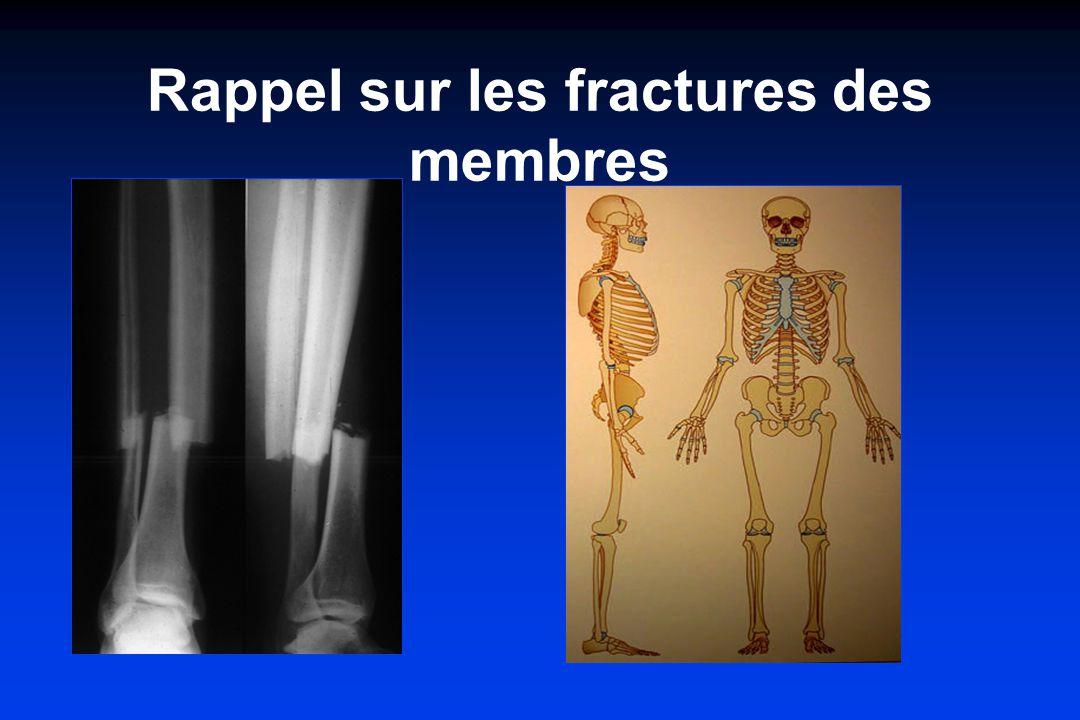 Rappel sur les fractures des membres