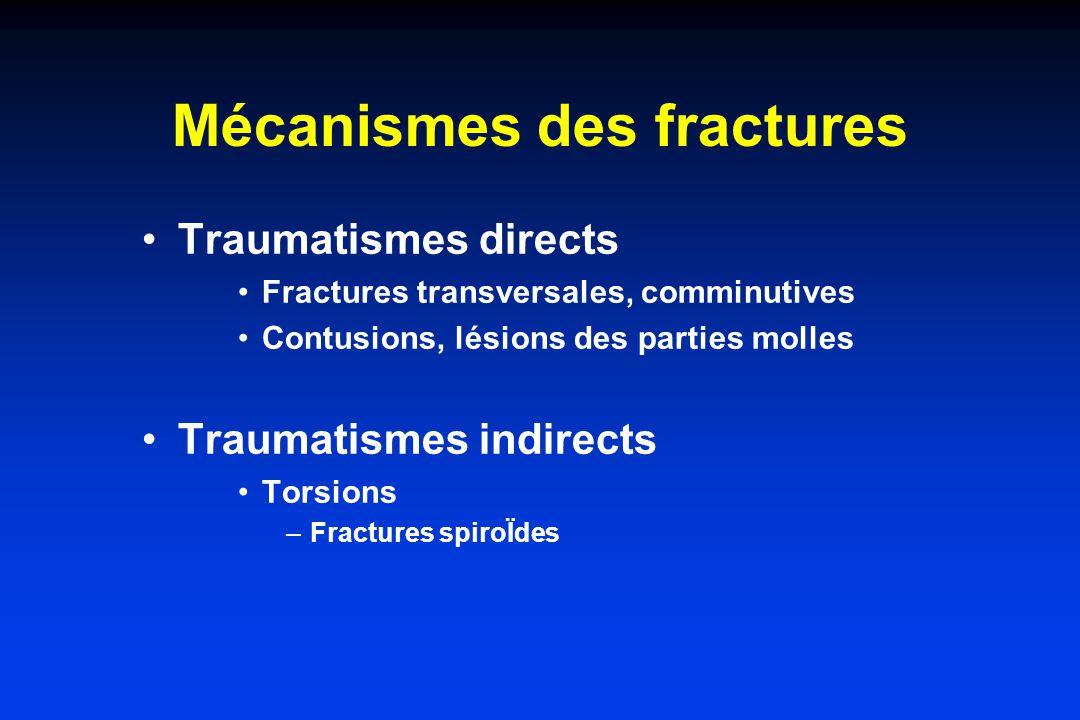 Mécanismes des fractures