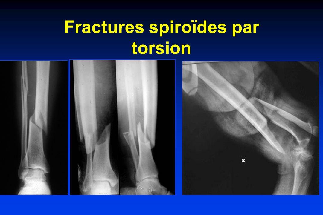 Fractures spiroïdes par torsion