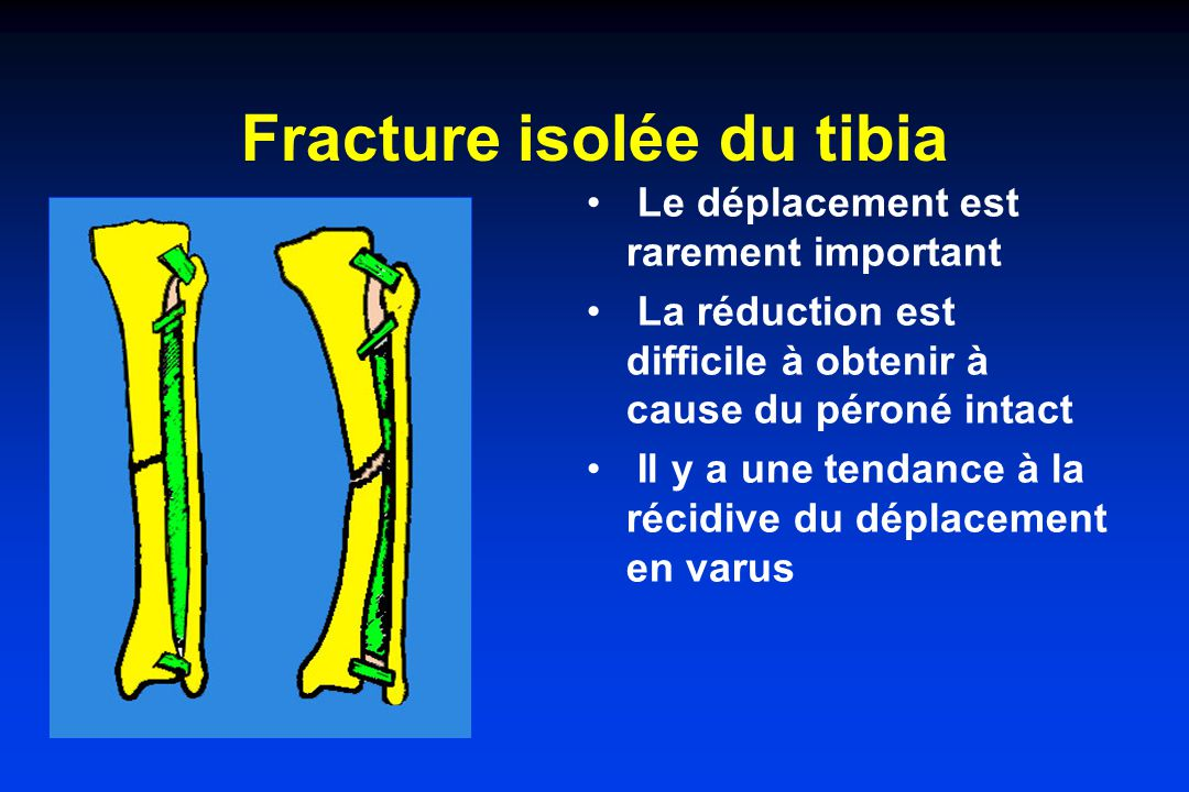 Fracture isolée du tibia