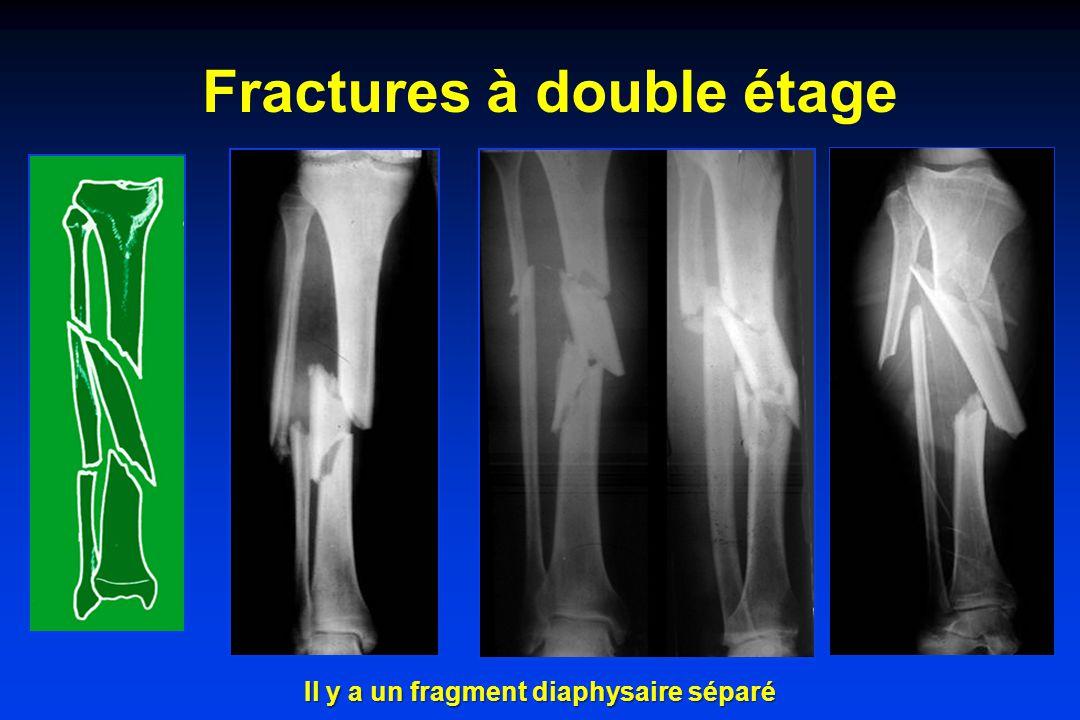 Fractures à double étage