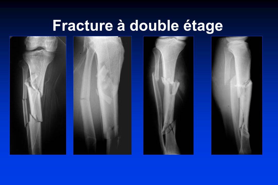 Fracture à double étage