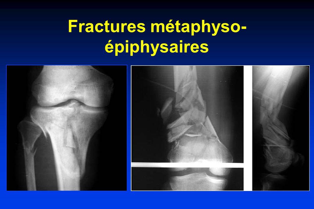 Fractures métaphyso-épiphysaires