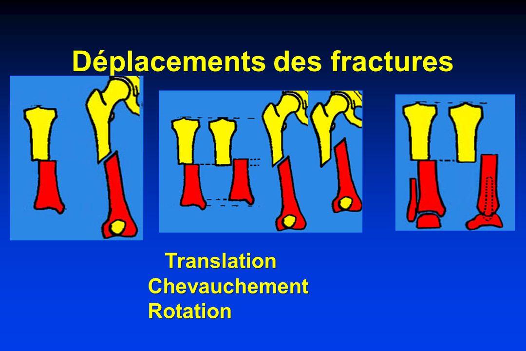 Déplacements des fractures