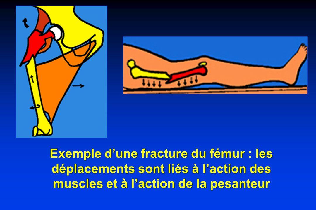 Exemple d'une fracture du fémur : les déplacements sont liés à l'action des muscles et à l'action de la pesanteur