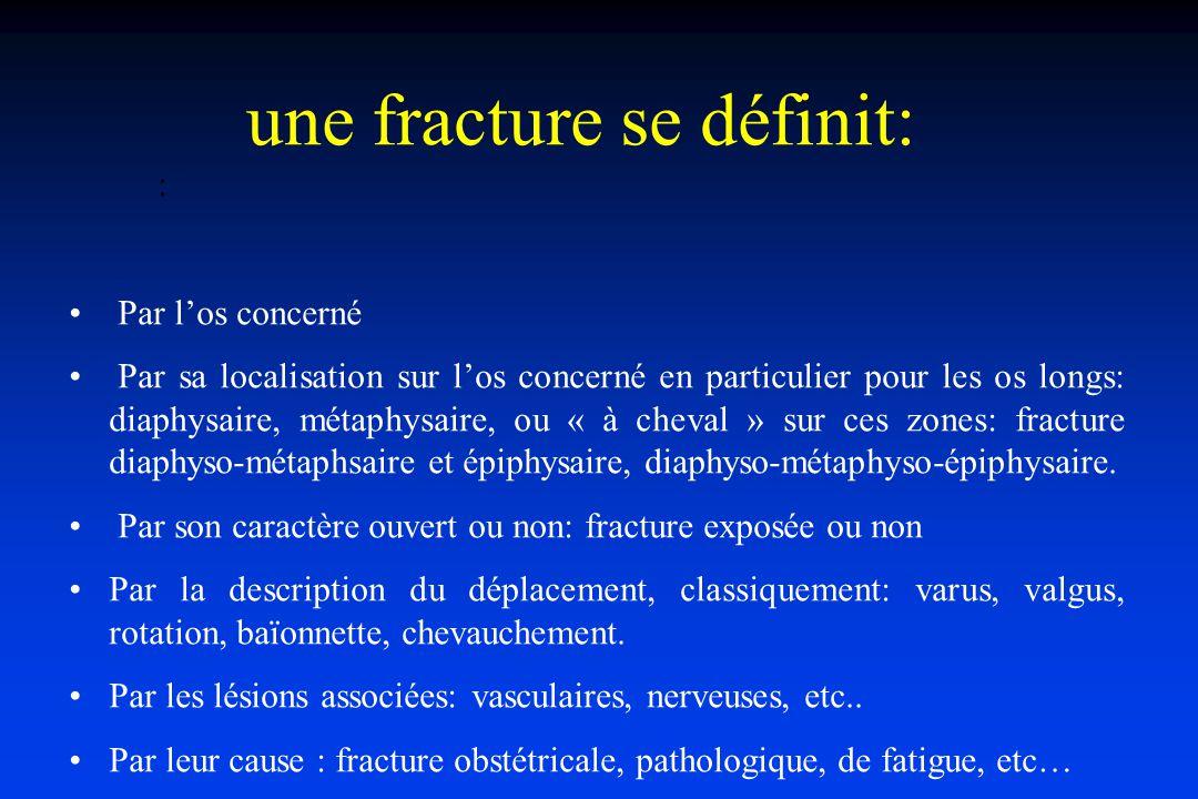 une fracture se définit: :