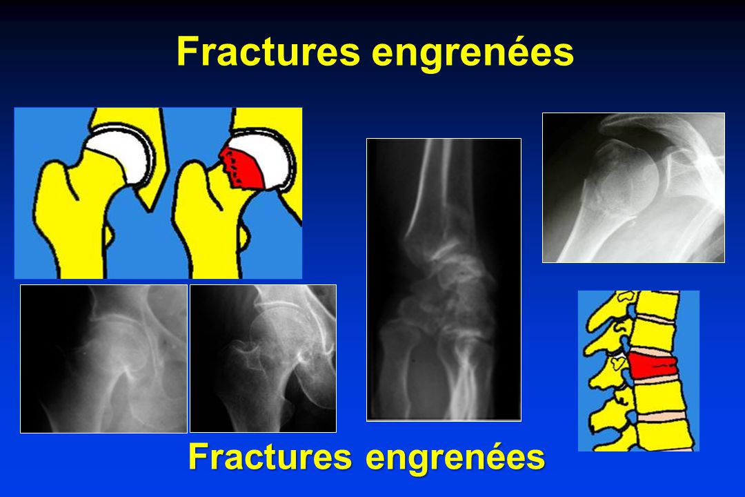Fractures engrenées Fractures engrenées