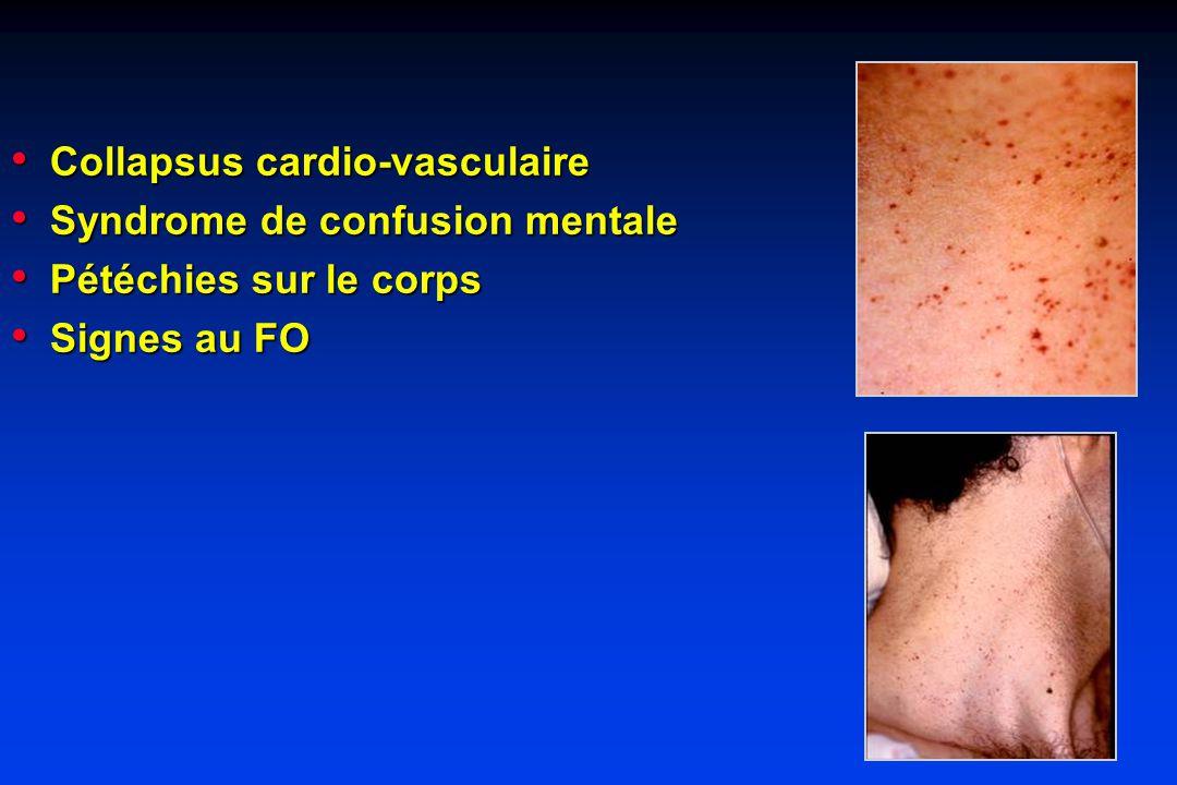 Collapsus cardio-vasculaire