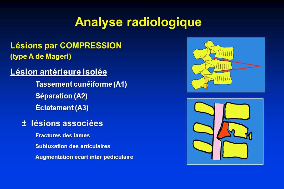 Analyse radiologique Lésions par COMPRESSION Lésion antérieure isolée