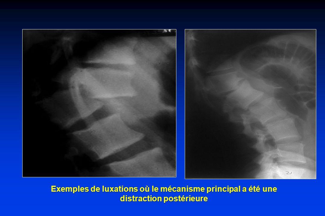 Exemples de luxations où le mécanisme principal a été une distraction postérieure