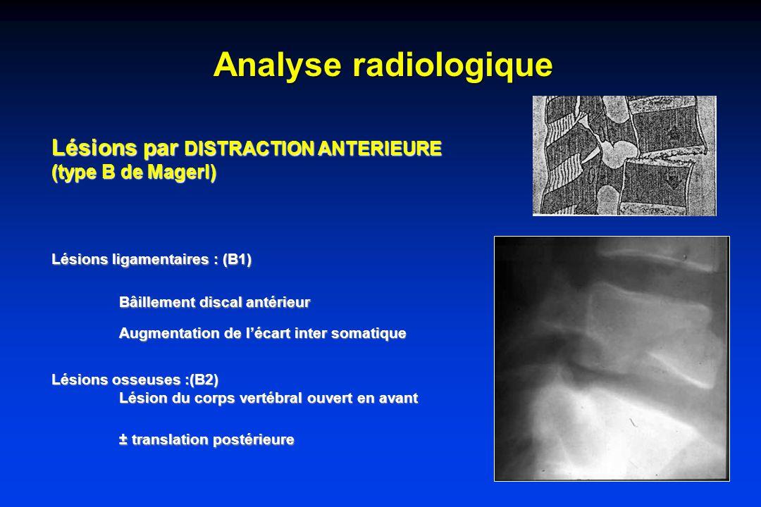 Analyse radiologique Lésions par DISTRACTION ANTERIEURE