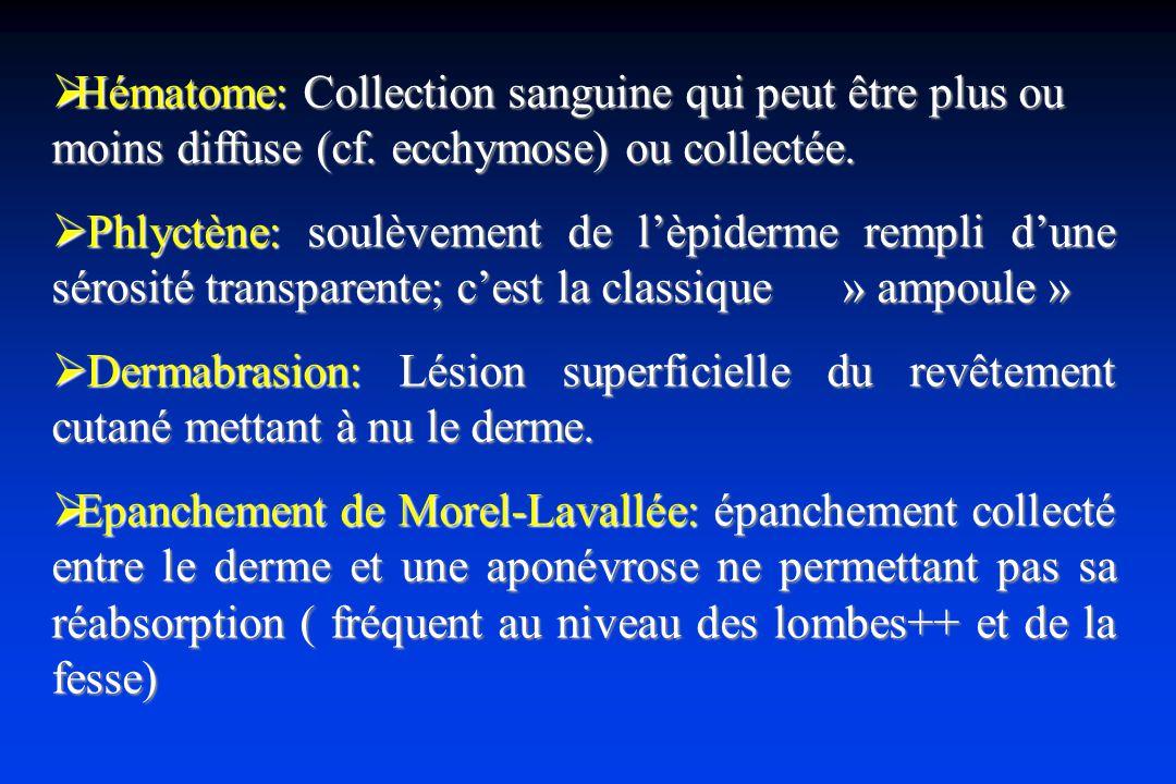 Hématome: Collection sanguine qui peut être plus ou moins diffuse (cf