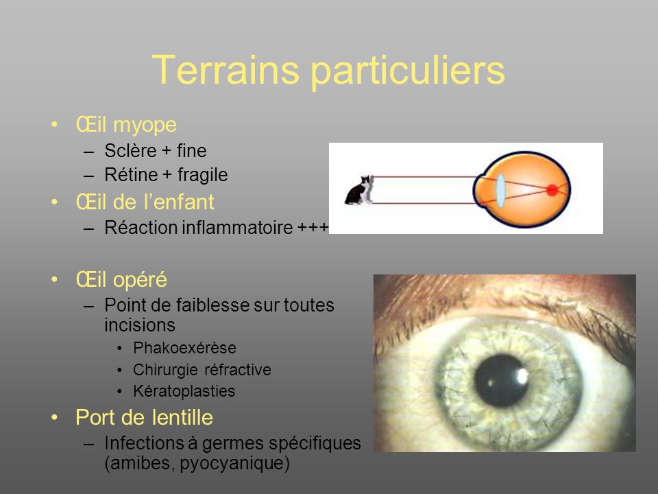 Terrains particuliers