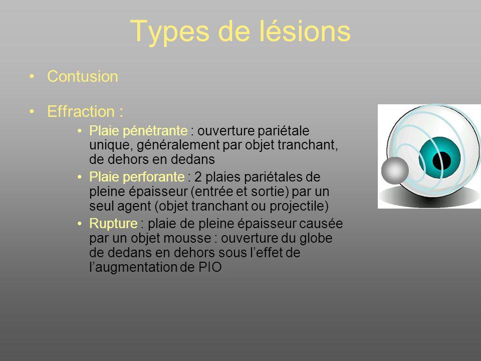 Types de lésions Contusion Effraction :