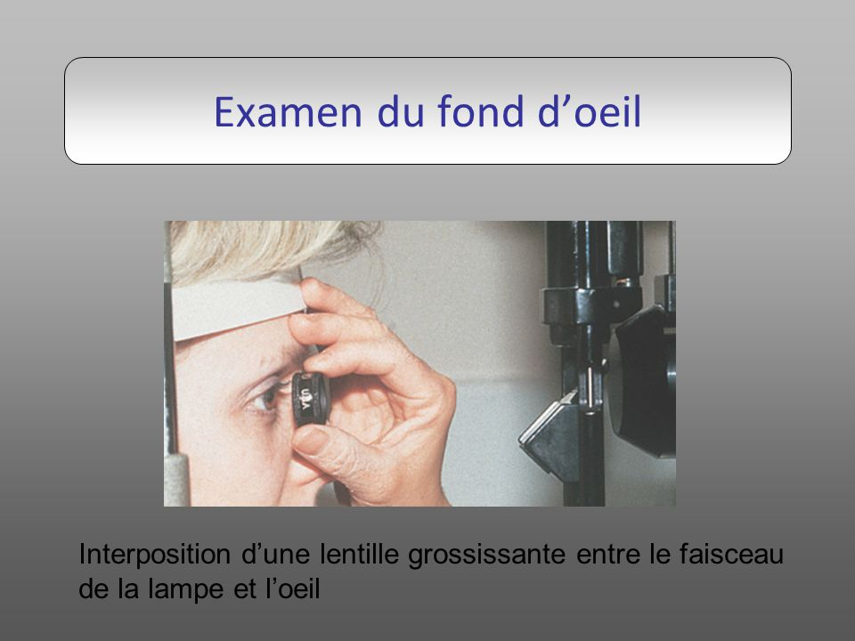 Examen du fond d'oeil Interposition d'une lentille grossissante entre le faisceau.