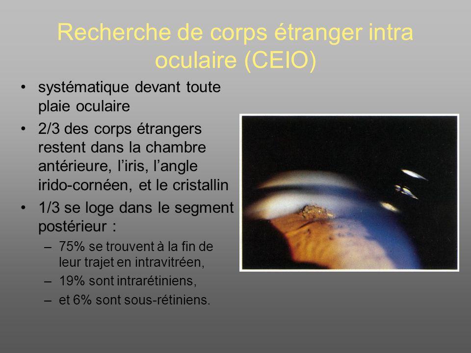 Recherche de corps étranger intra oculaire (CEIO)