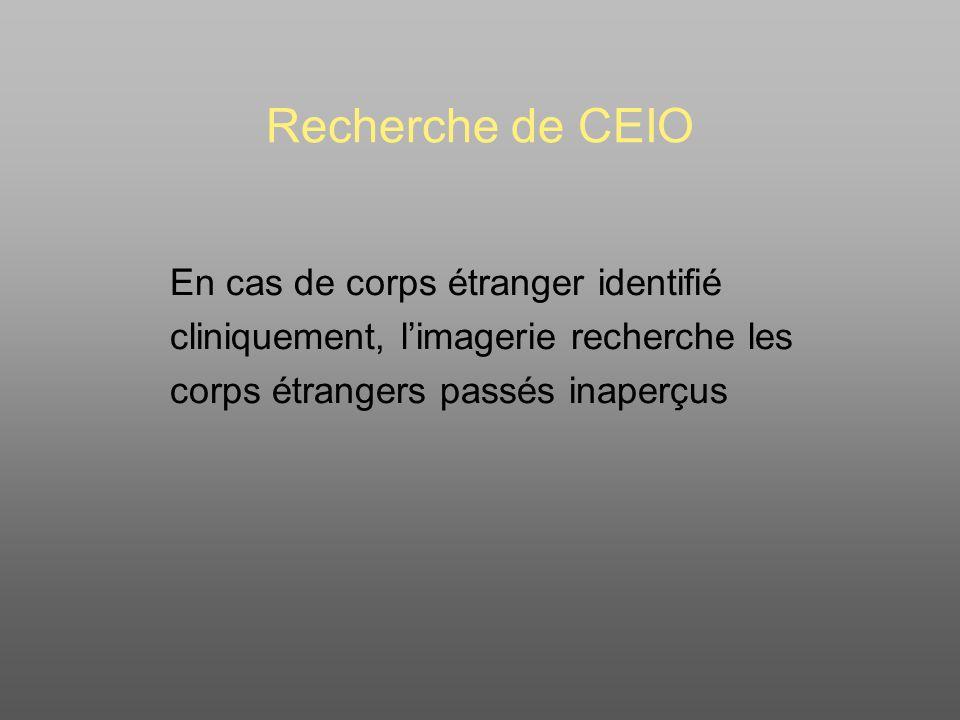 Recherche de CEIO En cas de corps étranger identifié