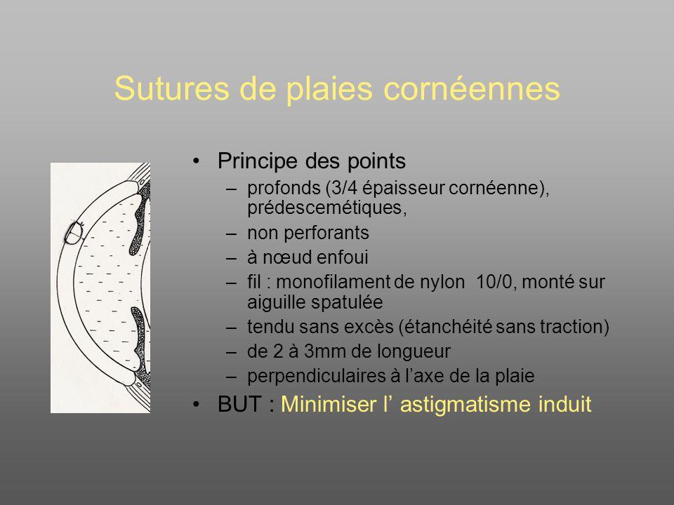 Sutures de plaies cornéennes
