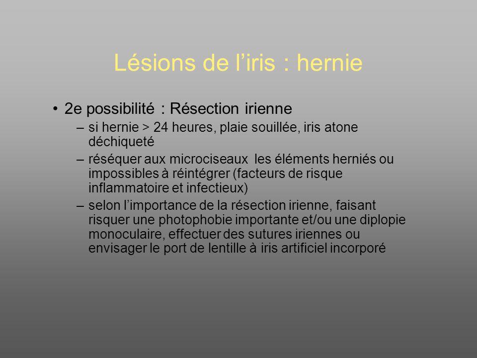Lésions de l'iris : hernie