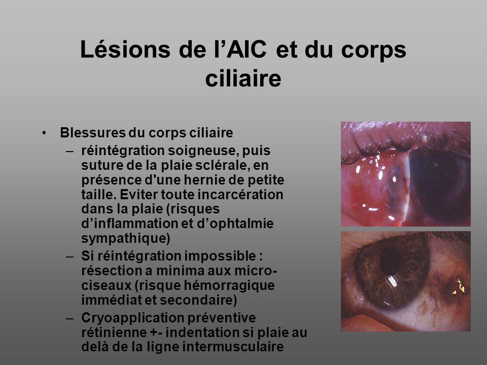 Lésions de l'AIC et du corps ciliaire
