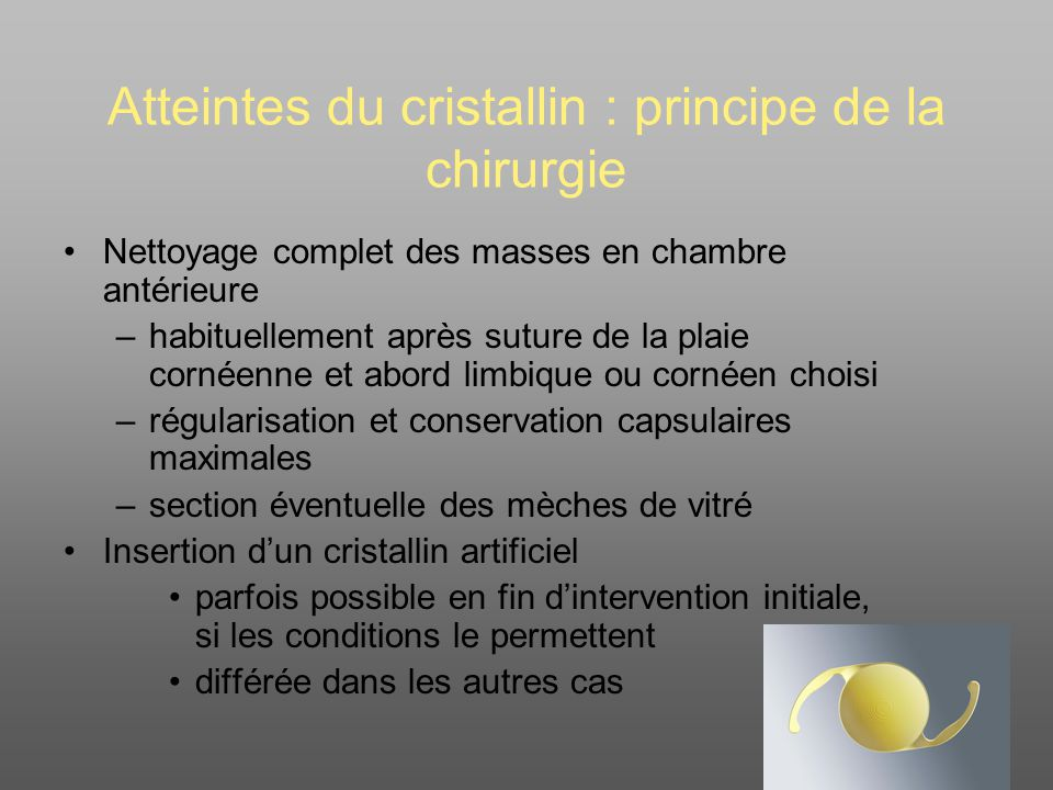 Atteintes du cristallin : principe de la chirurgie