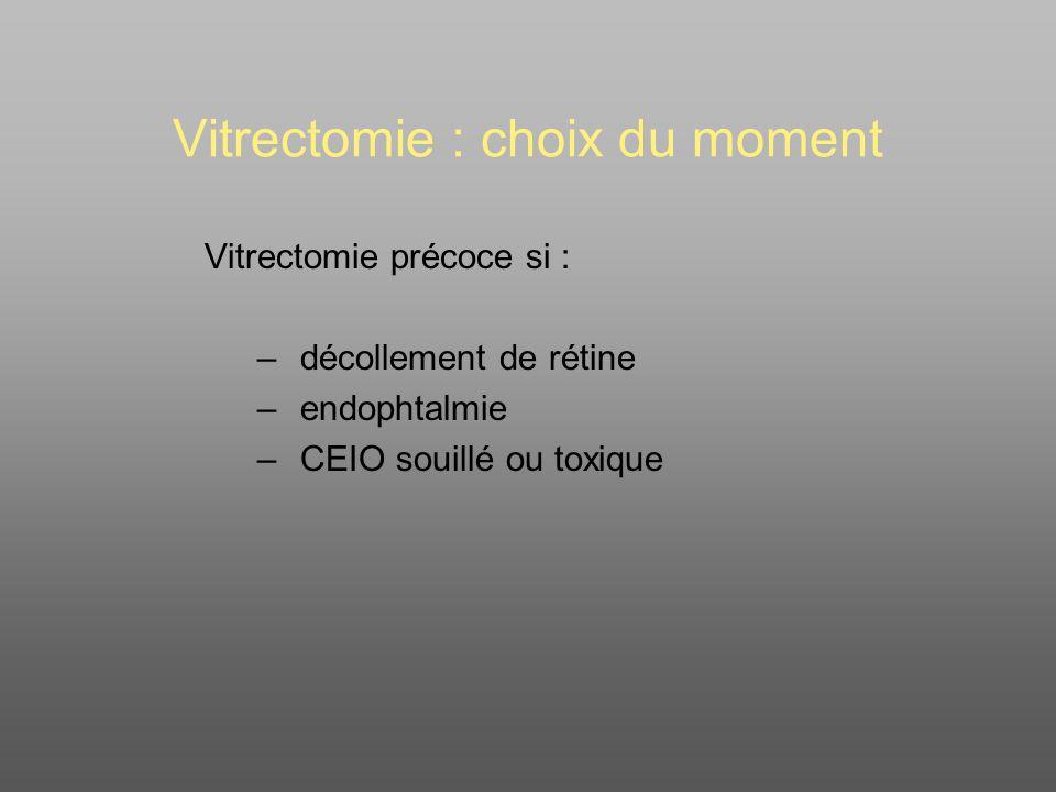 Vitrectomie : choix du moment
