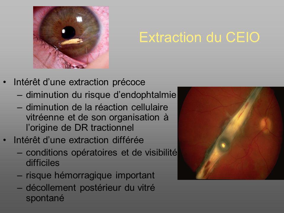 Extraction du CEIO Intérêt d'une extraction précoce