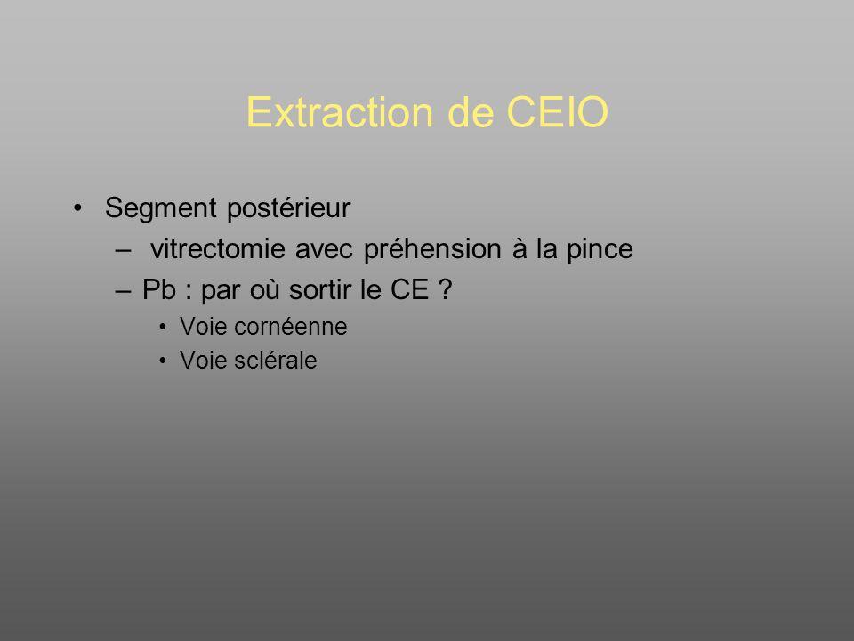 Extraction de CEIO Segment postérieur